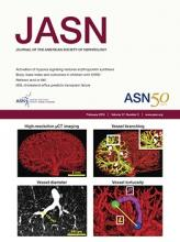 Journal of the American Society of Nephrology: 27 (2)