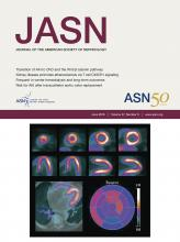 Journal of the American Society of Nephrology: 27 (6)