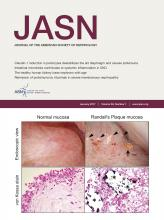 Journal of the American Society of Nephrology: 28 (1)