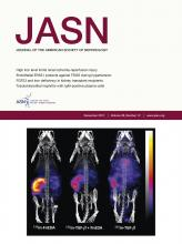 Journal of the American Society of Nephrology: 28 (12)