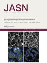Journal of the American Society of Nephrology: 28 (5)