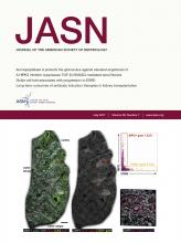 Journal of the American Society of Nephrology: 28 (7)