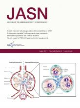Journal of the American Society of Nephrology: 28 (8)