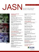 Journal of the American Society of Nephrology: 30 (10)
